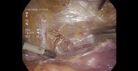 PARAMETRIAL DISSECTION